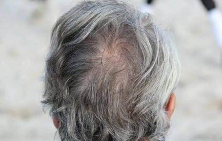 Stress = cheveux blancs